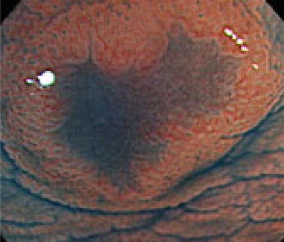 拡大することで、腫瘍の構造が明確になり詳細な診断が可能となります
