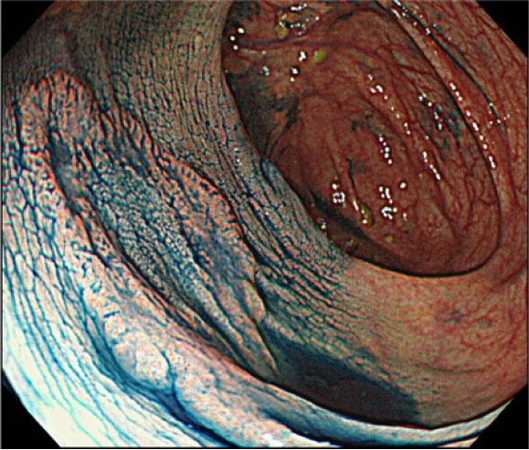 LSTという腫瘍に色素をかけたところ