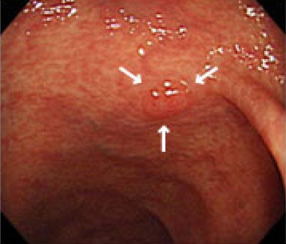 わずか2mmの陥凹型腫瘍を発見