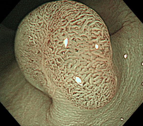腺腫と拡大像